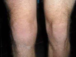 O joelho inchado como tratar