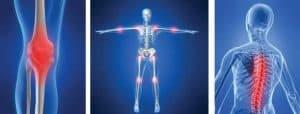 doenças ortopédicas