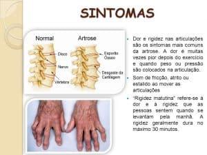 sintomas da artrose