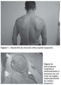 compressão do nervo supraescapular