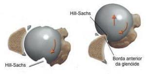 Hill-Sachs