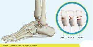 lesao ligamentar do tornozelo