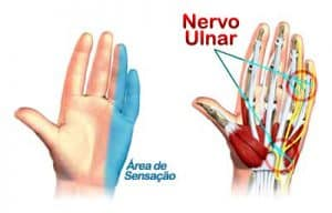 síndrome do canal guyon