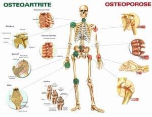 osteoartrite e osteoporose