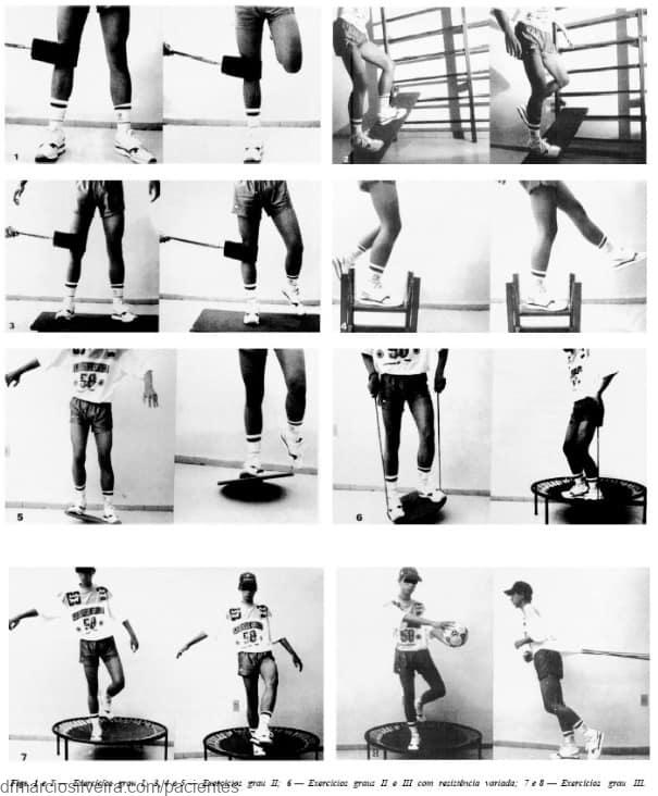 Tipos de treinamentos proprioceptivos no LCA