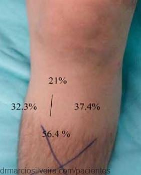 disestesia-joelho