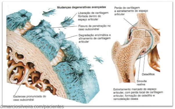 osso subcondral