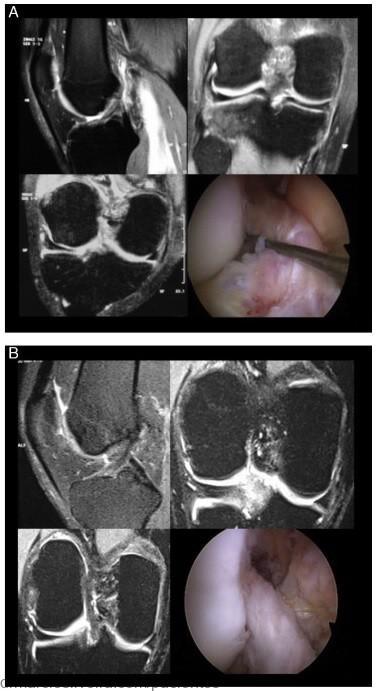ruptura parcial do ligamento cruzado anterior
