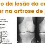 Progressão (evolução) da lesão da cartilagem articular na artrose do joelho