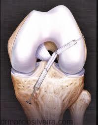 neo-enxerto do ligamento cruzado anterior