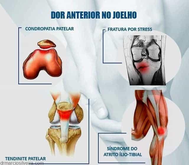 causas de dor anterior no joelho