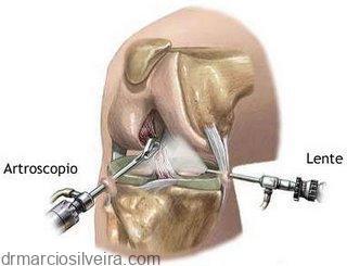tratamento de lesões meniscais