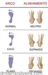 tipos de pés predispondo a canelite