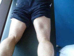 ruptura de músculo posterior na coxa