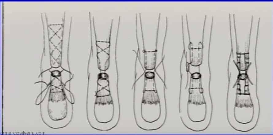 sutura da ruptura do tendão de aquiles