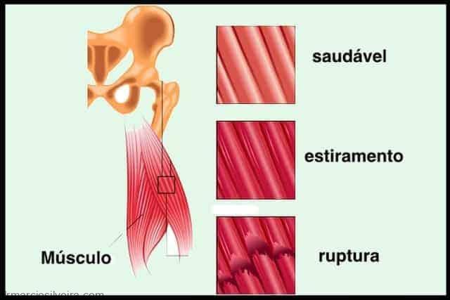 Lesões dos músculos posteriores da coxa