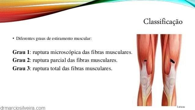 ruptura dos músculos anteriores da coxa