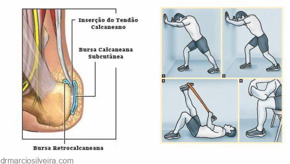 tratamento de tendinite do calcâneo
