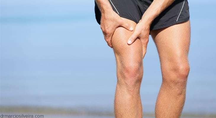 distensão do músculo quadríceps