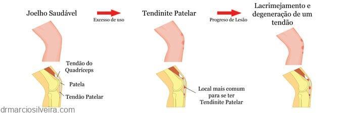 tendinopatia patelar