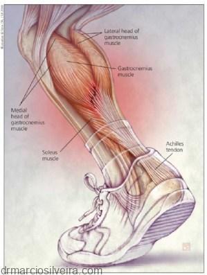 tennis leg
