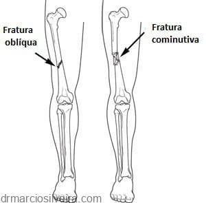 Fraturas do fêmur (osso da coxa)