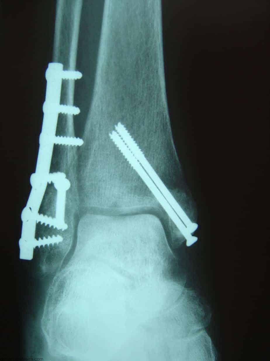 Tratamento para fraturas de tornozelo