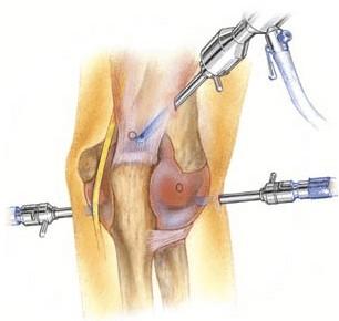 Operações por vídeo artroscopia
