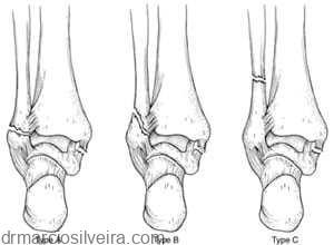Fratura de tornozelo - maléolos