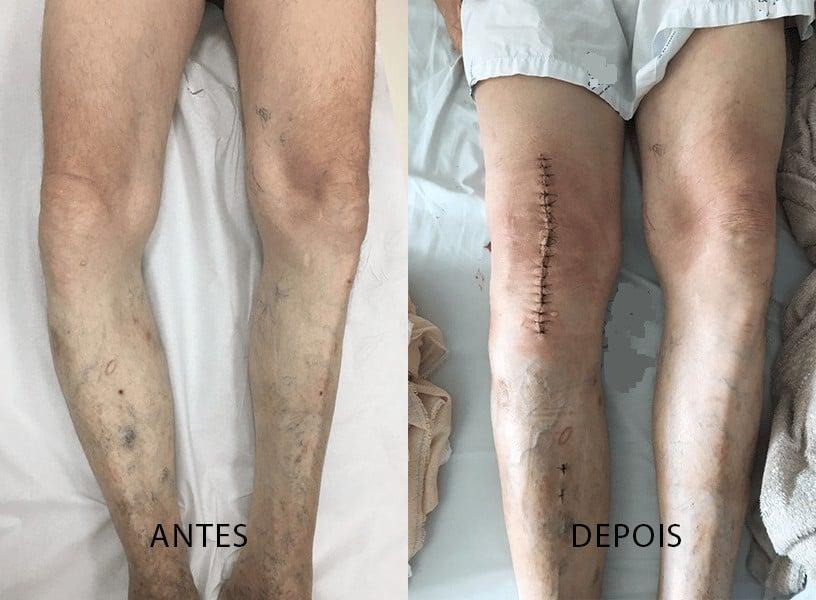 pós-operatório de artroplastia de joelho