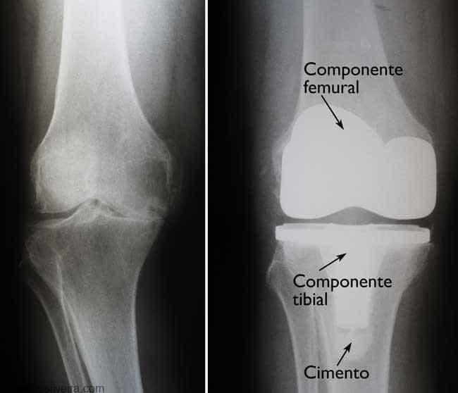 componentes da prótese de joelho
