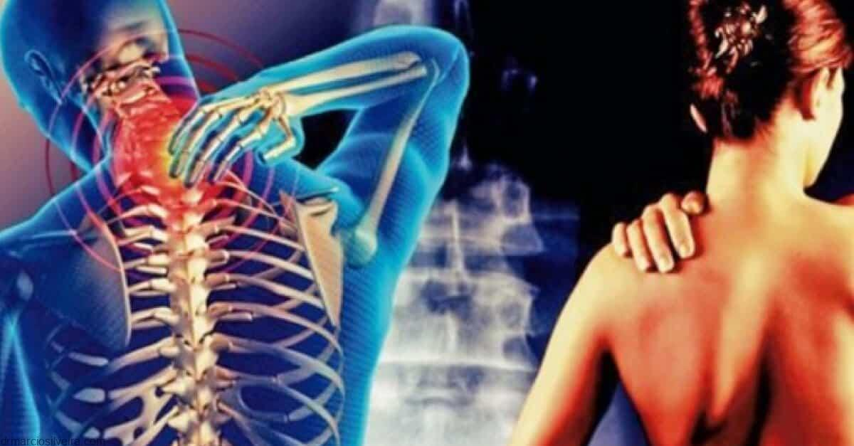 cervicobraquialgia ou cervicalgia