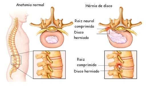 lombalgia e dorsalgia