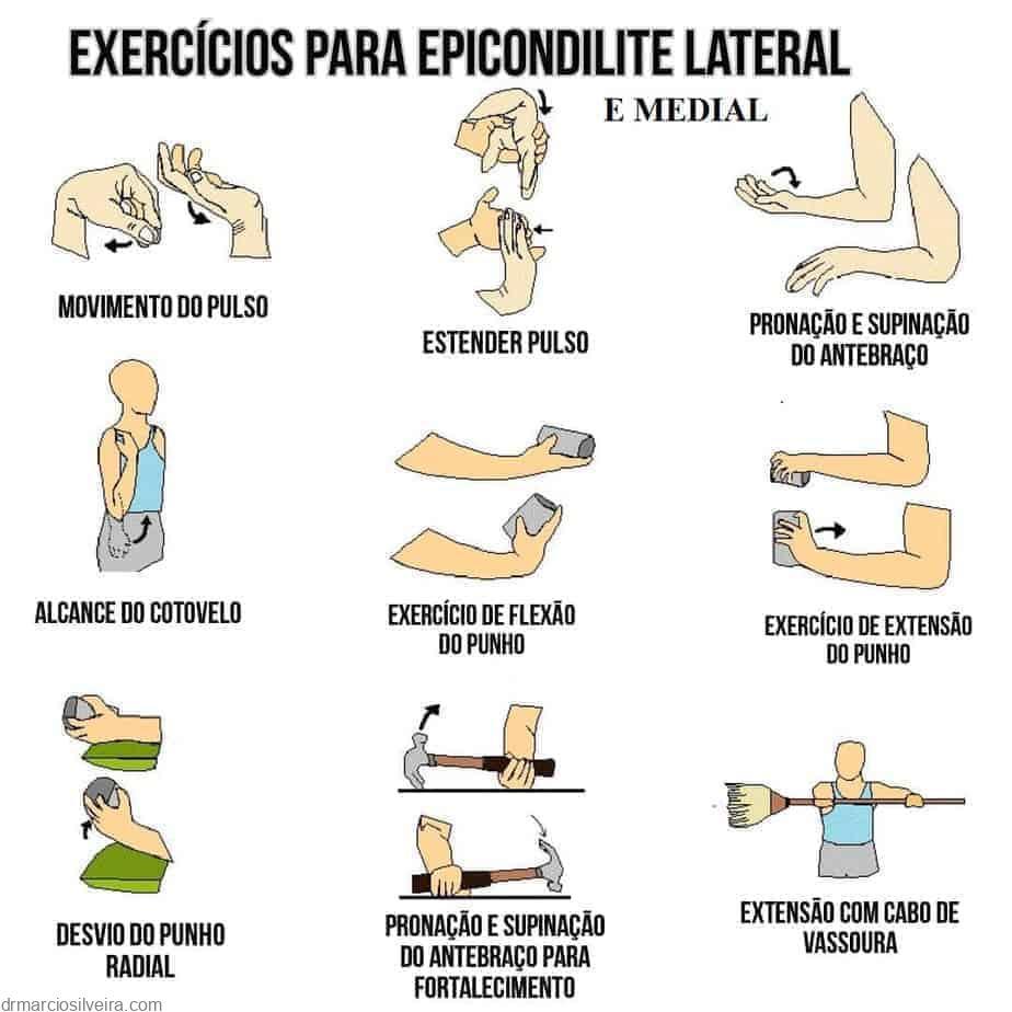 Exercícios para epicondilite