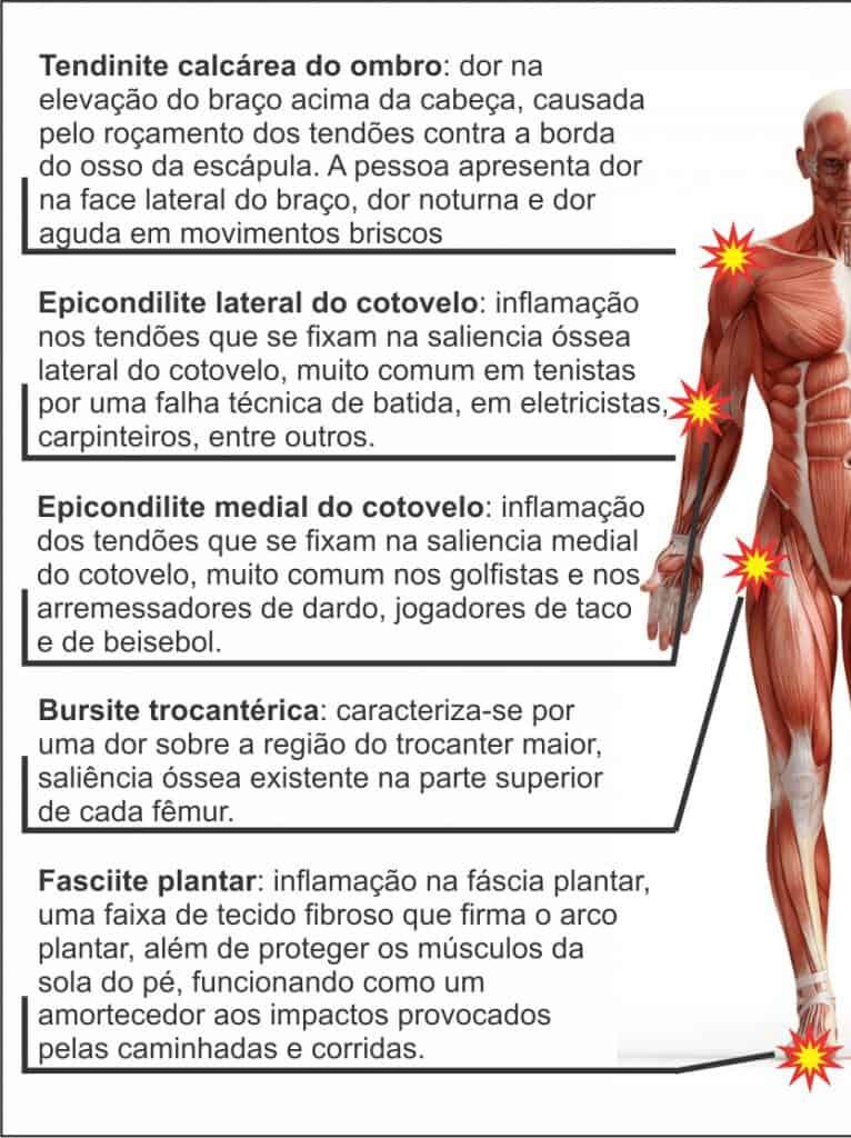 ortotripsia