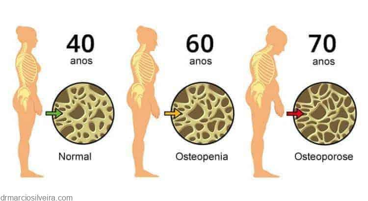 osteoporose ou fragilidade óssea