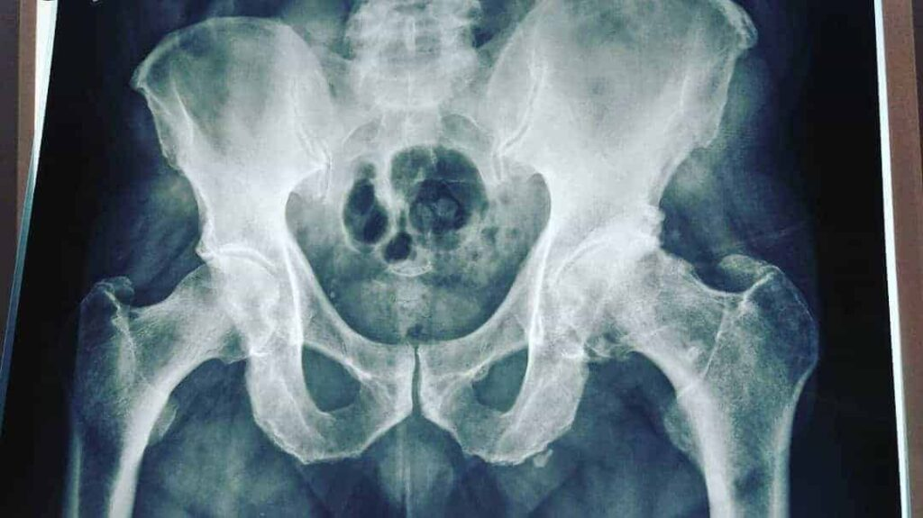 coxartrose ou artrose do quadril
