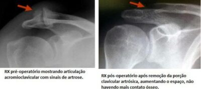 artrose acromioclavicular