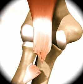 Ruptura do bíceps