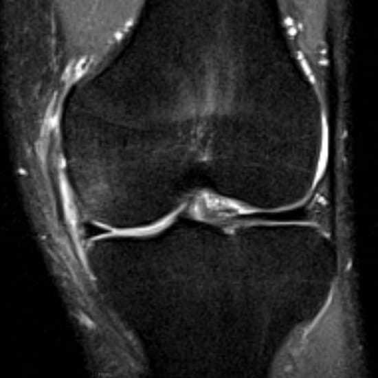 Lesão do ligamento colateral medial