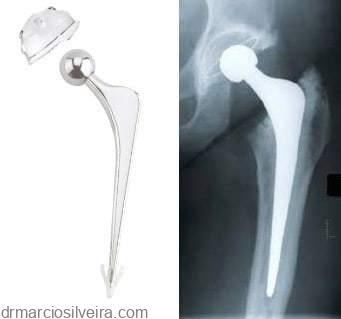 artroplastia do quadril