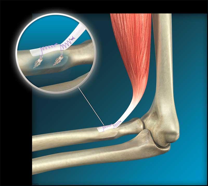 Ruptura do bíceps no cotovelo