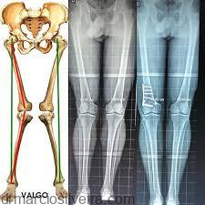 osteotomia do joelho valgizante