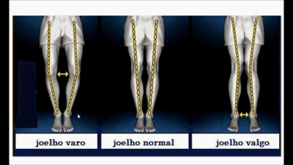 osteotomia no joelho