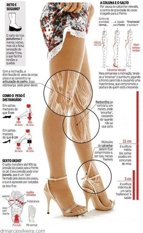uso do salto alto postura