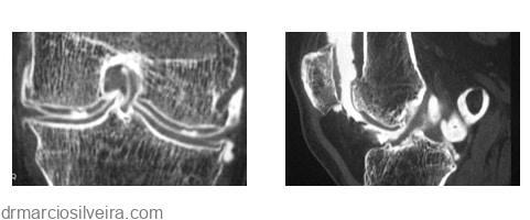 lesão cartilaginosa no joelho