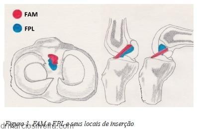 inserção - anatomia do ligamento cruzado anterior