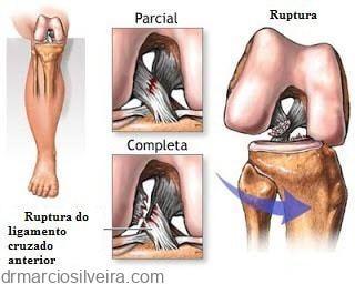 ruptura do ligamento cruzado anterior