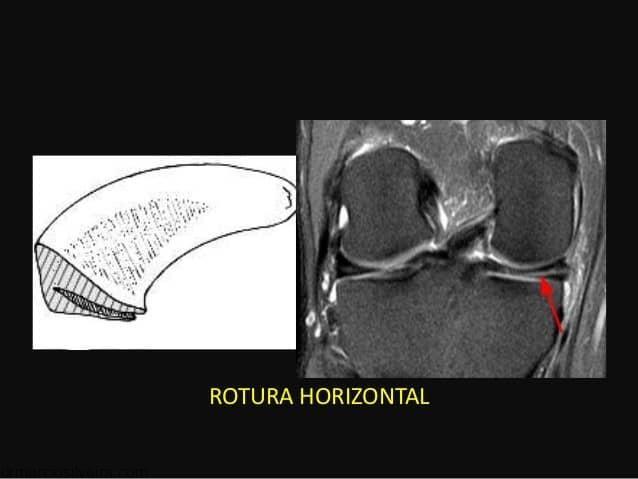 ruptura horizontal de menisco