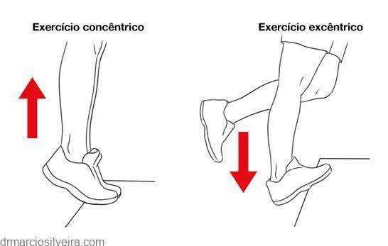 ruptura do músculo gastrocnêmio